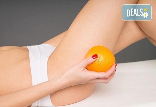 Антицелулитна ароматерапия с портокал и Dermosonic на три зони по избор на клиента в център ''Daerofit''! - Снимка 2