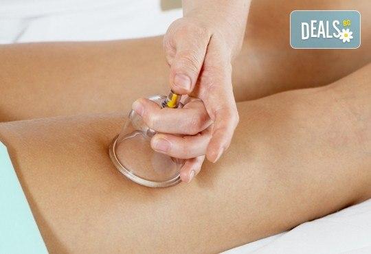 Дълбокотъканен антицелулитен смесен масаж с вендузи на всички засегнати зони в студио за масажи RG Style - Снимка 2