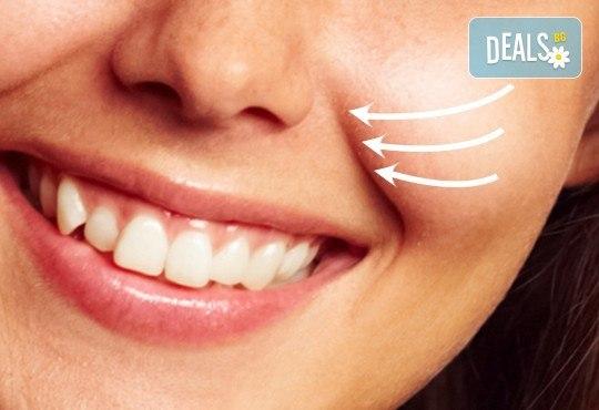 Ревитализирайте кожата си! Лифтинг на лице, назолабиални бръчки или околоочен контур с Диналифт от Айвис Студио - Снимка 1