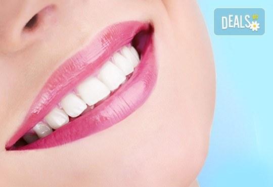 Професионално почистване на зъбен камък, полиране с AirFlow, стоматологичен преглед и цялостен план за лечение от Dental Studio Perfect - Снимка 1