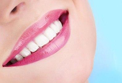 Професионално почистване на зъбен камък, полиране с AirFlow, стоматологичен преглед и цялостен план за лечение от Dental Studio Perfect - Снимка