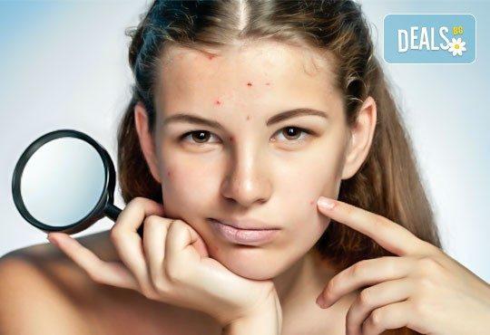 Перфектно лице! Почистване на лице, съчетано с антиакне, избелваща или подмладяваща терапия с хиалурон по избор от студио за красота Five! - Снимка 2