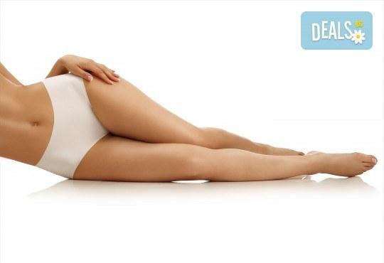 Стегната фигура с гладък силует! Вземете 1 или 5 процедури антицелулитен масаж на всички зони от масажно студио Spa Deluxe - Снимка 1