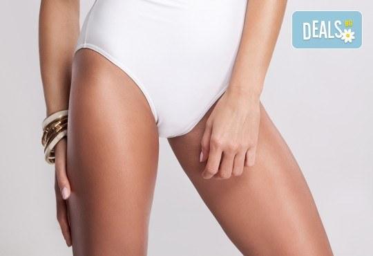 Оформете красиво тяло! Антицелулитен мануален масаж в комбинация с вендузи в Студио за масажи Матрикс 77! - Снимка 2