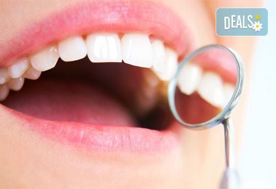 Поставяне на фотополимерна пломба или почистване на зъбен камък с ултразвук, полиране и обстоен преглед в СИТИ Дент, кв.Лозенец - Снимка 2