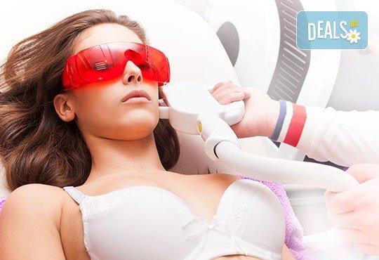 Процедури с E-LIGHT лазерна технология: премахване на капиляри, заличаване на пигментация или лечение на акне на лице в студио Хубава жена - Снимка 2
