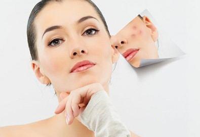 Процедури с E-LIGHT лазерна технология: премахване на капиляри, заличаване на пигментация или лечение на акне на лице в студио Хубава жена - Снимка