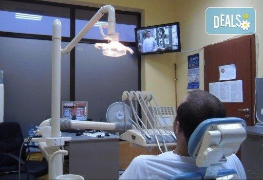 Професионално почистване на зъбен камък, полиране с AirFlow, стоматологичен преглед и цялостен план за лечение от Dental Studio Perfect - Снимка 4