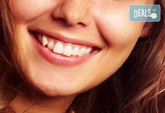 Обстоен преглед, план на лечение, почистване на зъбен камък, полиране с Air Flow и професионално избелване, от МР Дент - Снимка 1