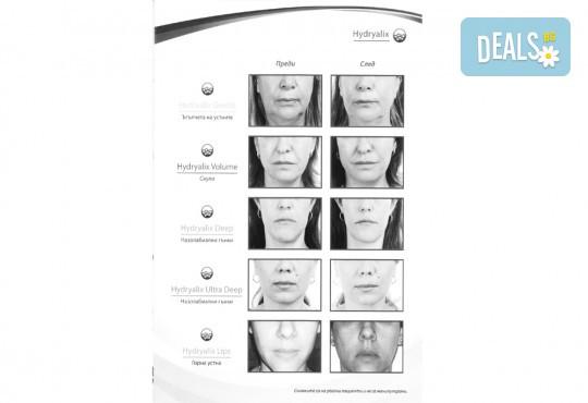 Обем и контур за устни с качествен френски филър по избор Hyaluronica или Hydryalix от SunClinic и д-р Светла Петкова - Снимка 4