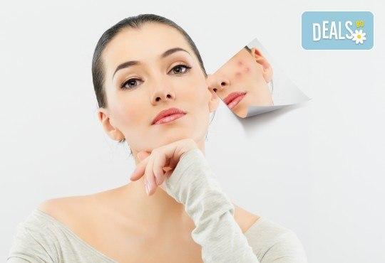 Изчистваща терапия против акне с натурални продукти за проблемна кожа във фризьоро-козметичен салон Вили - Снимка 1