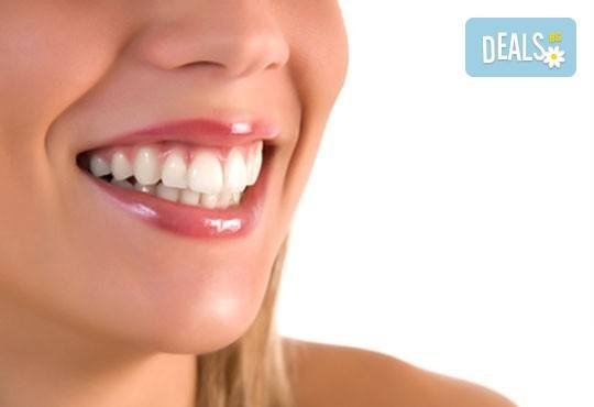 Поставяне на зъбно бижу в стоматологична клиника д-р Георгиев - Снимка 2