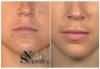 Безиглено уголемяване на устни или попълване на бръчки с американски хиалуронов филър и ултразвук от NSB Beauty Center! - thumb 4