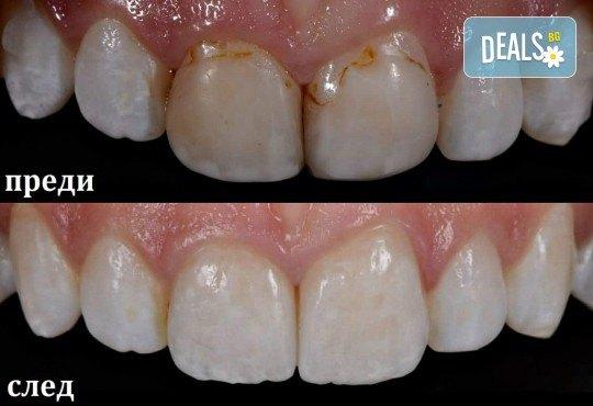 Високоестетична фотополимерна фасета (бондинг) на един зъб от дентален кабинет д-р Чорбаджаков - ж.к. Дружба 1 - Снимка 4