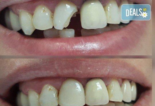 Високоестетична фотополимерна фасета (бондинг) на един зъб от дентален кабинет д-р Чорбаджаков - ж.к. Дружба 1 - Снимка 5