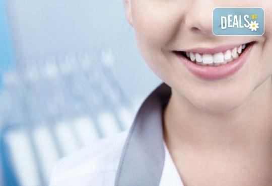 Високоестетична фотополимерна фасета (бондинг) на един зъб от дентален кабинет д-р Чорбаджаков - ж.к. Дружба 1 - Снимка 1