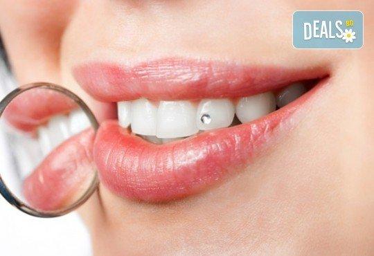 Поставяне на зъбно бижу в стоматологична клиника д-р Георгиев - Снимка 1