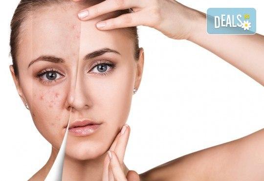 Сияйна, чиста и красива кожа с процедура за почистване на лице от салон за красота Белен - Снимка 2