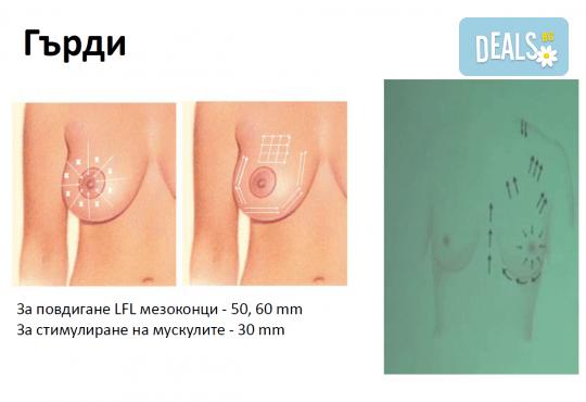 Уникална лифтинг процедура за зряла кожа! Мезоконци за изглаждане на контура на лицето и бръчките от SunClinic! - Снимка 4