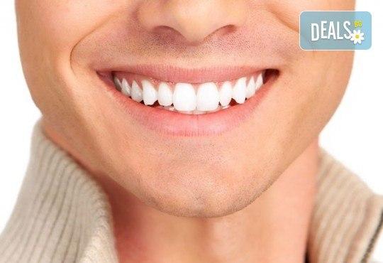 Бляскава усмивка с почистване на зъбен камък и полиране с Аr flow + обстоен преглед от Дентално студио Младост - Снимка 2