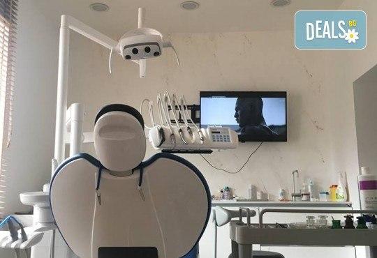 Заблестете! Поставяне на зъбно бижу в Стоматологичен кабинет Д-р Лозеви - Снимка 2