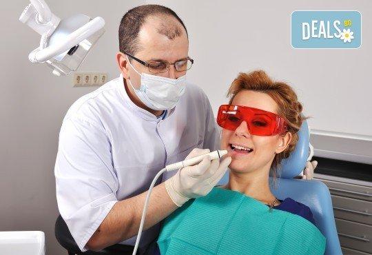 Почистване на зъбен камък с ултразвук, полиране с Air Flow, обстоен преглед и план за лечение в Стоматологичен кабинет Д-р Лозеви - Снимка 1