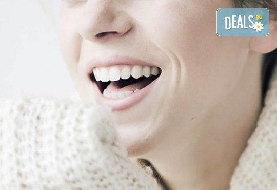Почистване на зъбен камък с ултразвук, полиране с Air Flow, обстоен преглед и план за лечение в Стоматологичен кабинет Д-р Лозеви - Снимка 2