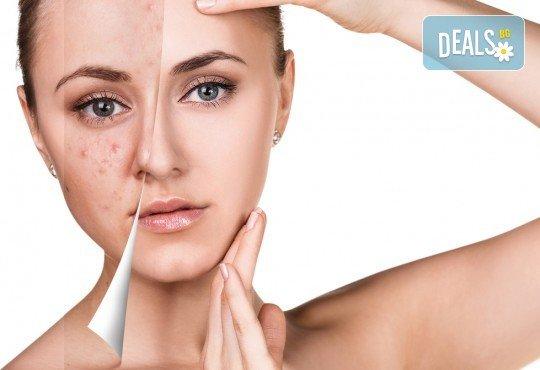 Дълбоко почистване на лице в 11 стъпки с нанасяне на седефен пилинг и матиращ флуид от Sunflower beauty studio - Снимка 1
