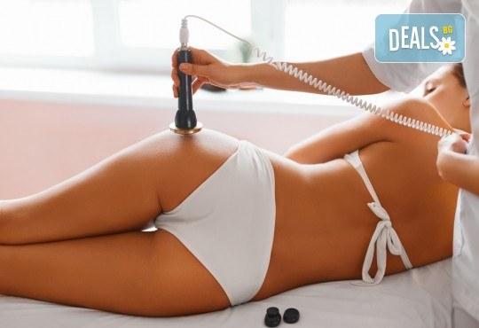 Кавитация и радиочестотен лифтинг на зона по избор за оптимален ефект в Anima Beauty&Relax - Снимка 2