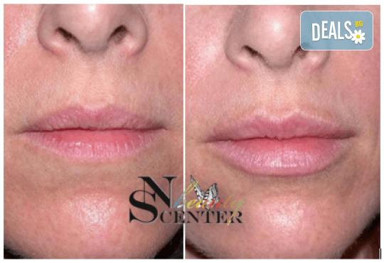 Безиглено уголемяване на устни или попълване на бръчки с американски хиалуронов филър и ултразвук от NSB Beauty Center! - Снимка 3