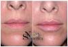 Безиглено уголемяване на устни или попълване на бръчки с американски хиалуронов филър и ултразвук от NSB Beauty Center! - thumb 3