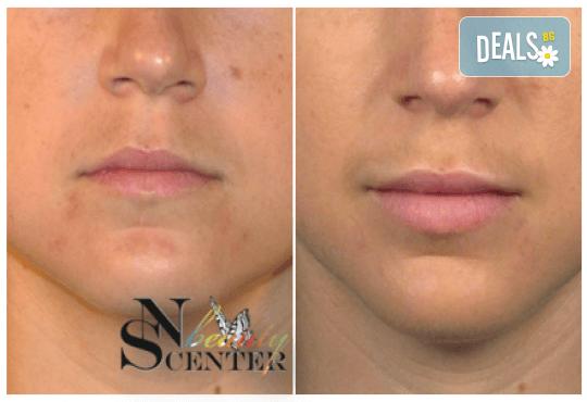 Безиглено уголемяване на устни или попълване на бръчки с американски хиалуронов филър и ултразвук от NSB Beauty Center! - Снимка 4