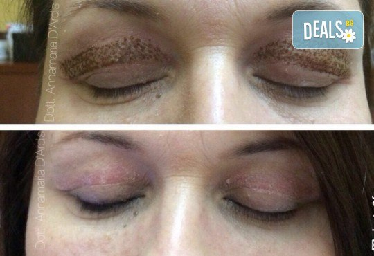 Незабавен резултат с видимо по-свеж поглед! Неоперативно повдигане на горен клепач и намаляване на торбичките под очите (блефароплсатика) от SunClinic! - Снимка 4