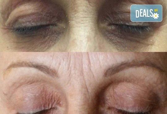 Незабавен резултат с видимо по-свеж поглед! Неоперативно повдигане на горен клепач и намаляване на торбичките под очите (блефароплсатика) от SunClinic! - Снимка 5