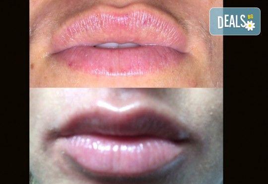 Сочни устни или кожа без бръчки! Безиглено влагане на хиалуронова киселина - 1 или 6 процедури, в салон за красота Vintage Dolls - Снимка 3