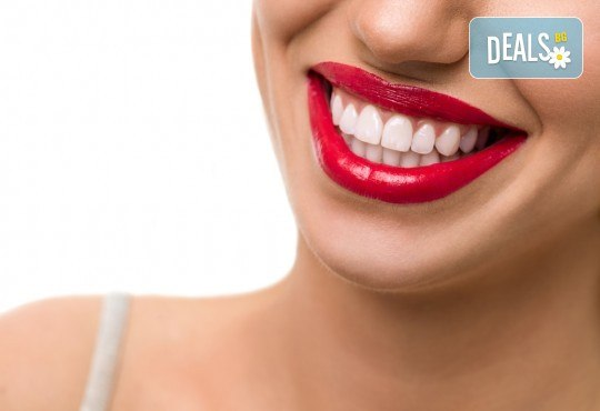 Холивудска усмивка! Професионално избелване на зъби със система и LED лампа от Sun-Dental - Снимка 2
