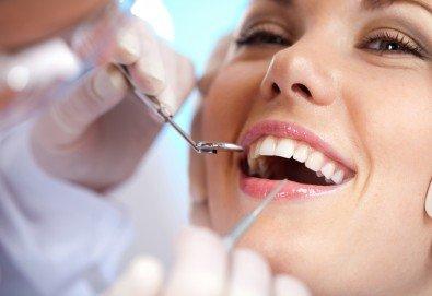 Фотополимерна пломба от висококачествен композитен материал, полиране, преглед и консултация от Sun-Dental! - Снимка