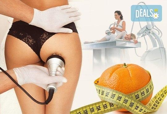 Радиочестотен лифтинг, кавитация или ръчен антицелулитен масаж по избор в козметично студио Beauty, кв. Лозенец! - Снимка 1