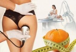 Радиочестотен лифтинг, кавитация или ръчен антицелулитен масаж по избор в козметично студио Beauty, кв. Лозенец! - Снимка