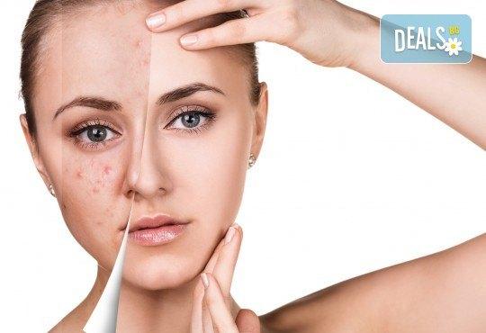 Красива и чиста кожа! Мануално почистване на лице с пилинг и маска според нуждите на кожата в козметично студио Beauty - Снимка 2