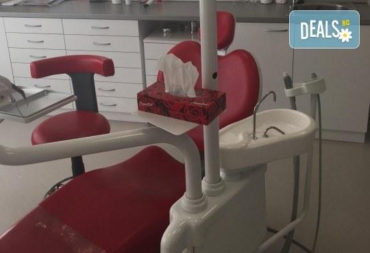 Професионално избелване на зъби с швейцарска система Pure Whitening System, дентален кабинет Д-р Георгиева - Снимка 4