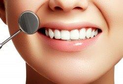 Подарете си бяла усмивка! Избелване на зъби с LED лампа, почистване на зъбен камък и полиране от Sun-Dental - Снимка