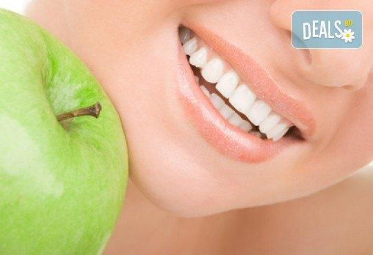 Фотополимерна пломба от висококачествен композитен материал, полиране, преглед и консултация от Sun-Dental! - Снимка 2