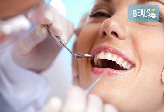 Фотополимерна пломба от висококачествен композитен материал, полиране, преглед и консултация от Sun-Dental! - Снимка 1