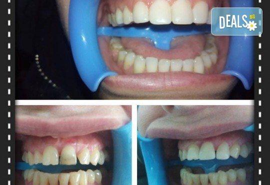 Красива усмивка с бондинг - поставяне на фотополимерна фаcета на един зъб в дентална клиника Персенк! - Снимка 4