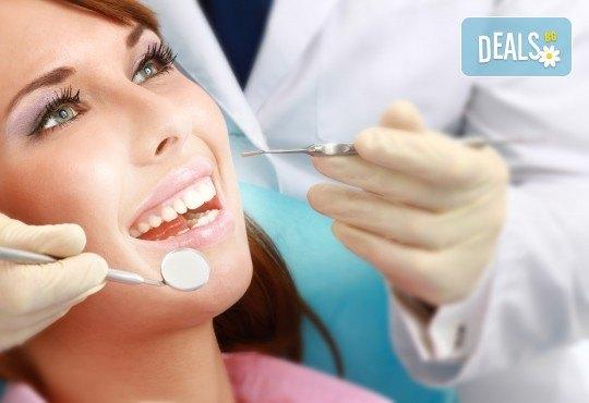 Лечебно-възстановителна процедура за укрепване на емайла на зъбите и лечение на кариеси - реминерализация в дентална клиника Персенк! - Снимка 2