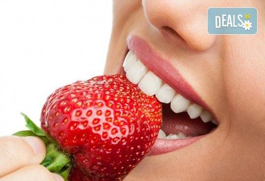 Лечебно-възстановителна процедура за укрепване на емайла на зъбите и лечение на кариеси - реминерализация в дентална клиника Персенк! - Снимка 1
