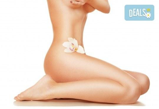Гладка като коприна кожа! IPL+RF фотоепилация за жени на пълен интим и подмишници в салон за красота Beauty Angel! - Снимка 1