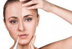 За кожа без несъвършенства! Почистване на лице с продукти на Profi Derm в салон за красота Cuatro! - Снимка