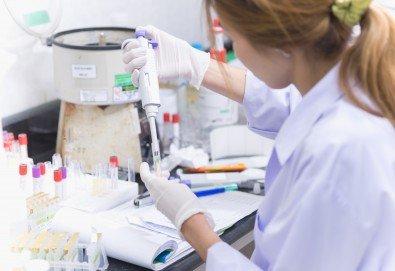 Пакет Паразитология - серологично изследване за ехинокок, токсоплазмоза Ig G и токсоплазмоза Ig M в Лаборатории Микробиолаб! - Снимка